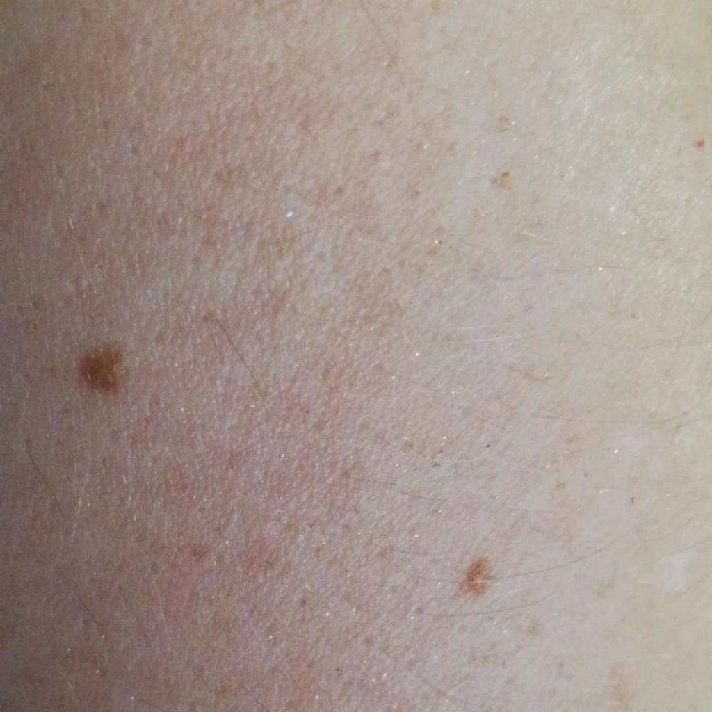 Haut, nachdem das Öl eingezogen ist
