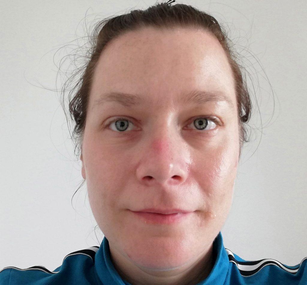 Gesichtshaut vor Testbeginn