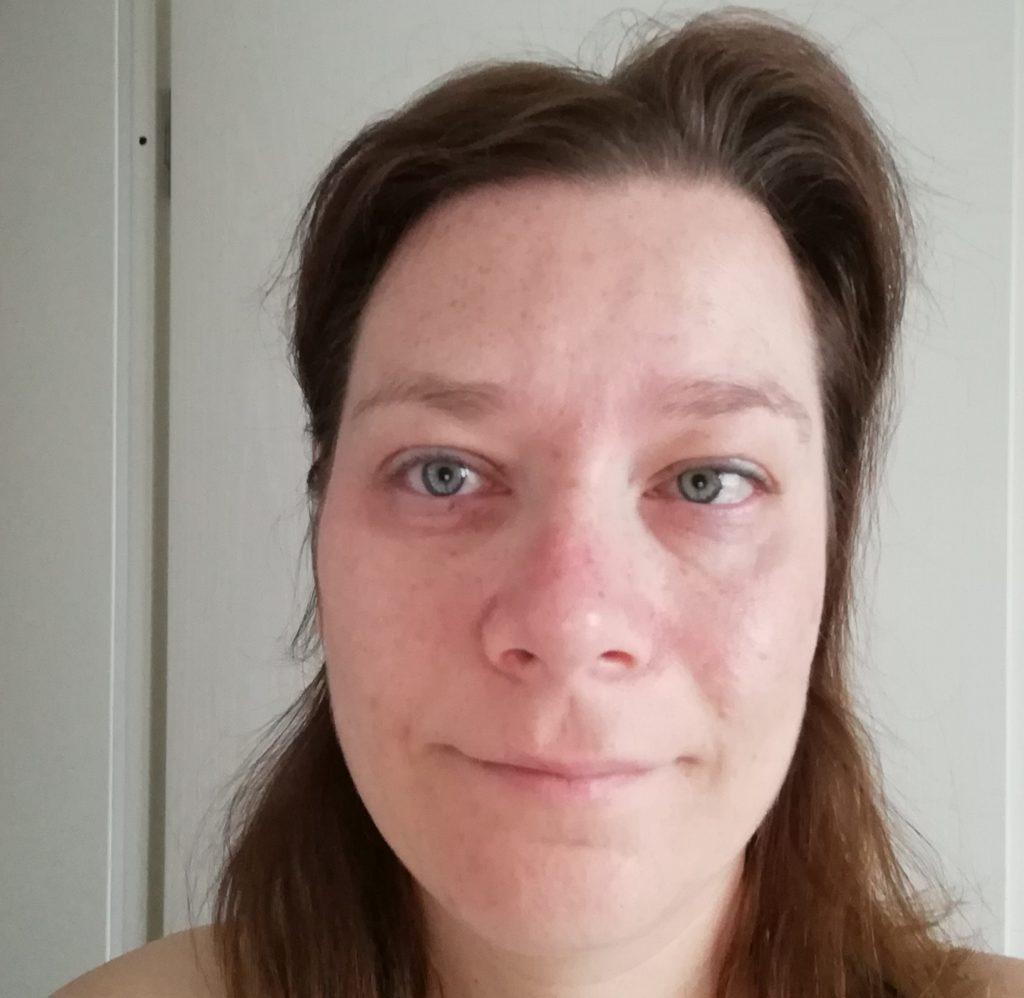 Gesichtshaut nach vier Wochen